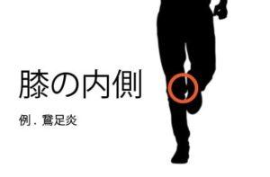 膝の内側の痛み